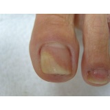 tratamento de micose nos pés