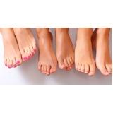 tratamento contra descamação nos pés
