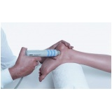 tratamento em pés sensíveis