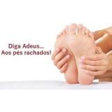 produtos para pés ressecados