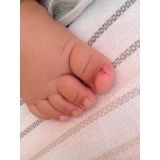 tratamento para unha encravada em bebê