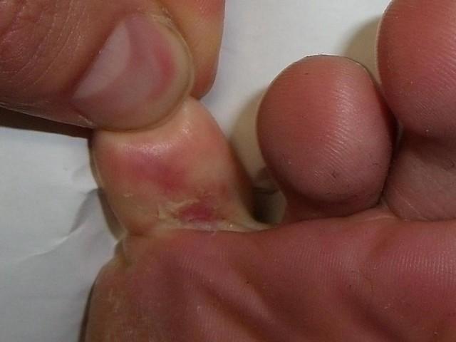 Tratamento contra Fungo nos Pés Jardim Bonfiglioli - Tratamento de Micose das Unhas