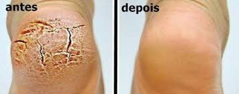 Tratamento contra Rachaduras entre Os Dedos Preço Higienópolis - Tratamento de Rachadura no Calcanhar