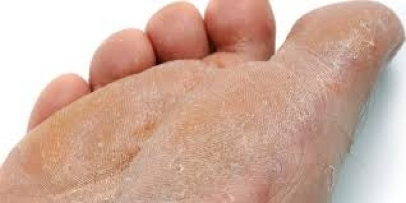Tratamento de Rachadura no Pé Brooklin - Tratamento para Rachadura dos Calcanhares