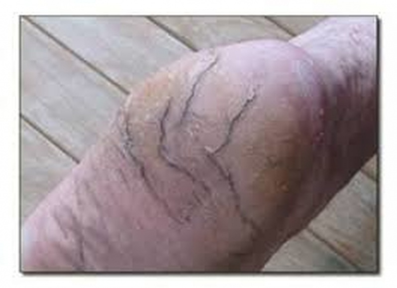 Tratamento de Rachadura nos Pés Preço Morumbi - Tratamento para Rachadura dos Calcanhares
