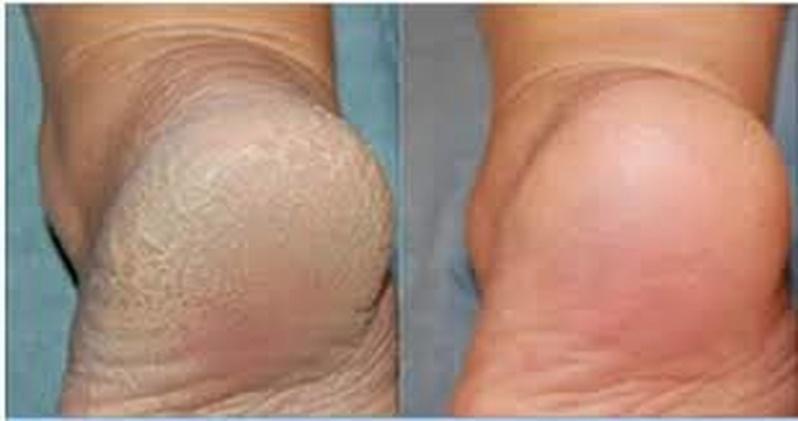 Tratamento de Rachaduras Cambuci - Tratamento de Rachadura dos Pés