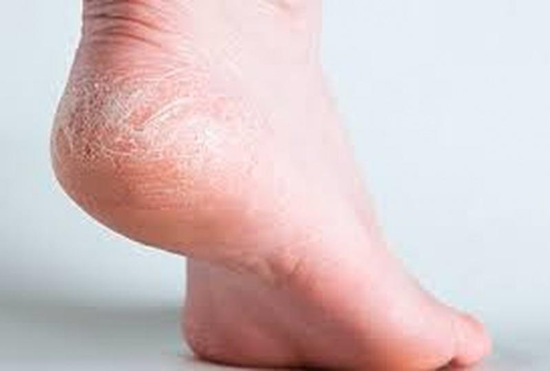 Tratamento para Fissuras no Calcanhar Sé - Tratamento de Rachaduras