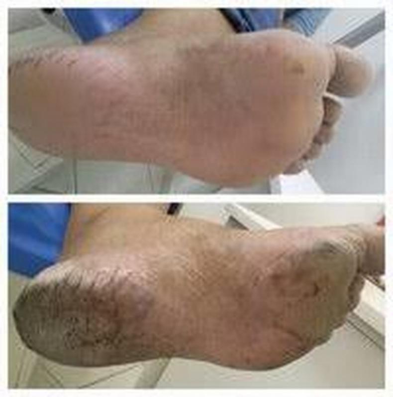 Tratamento para Rachadura dos Calcanhares Jockey Club - Tratamento para Rachaduras na Sola dos Pés