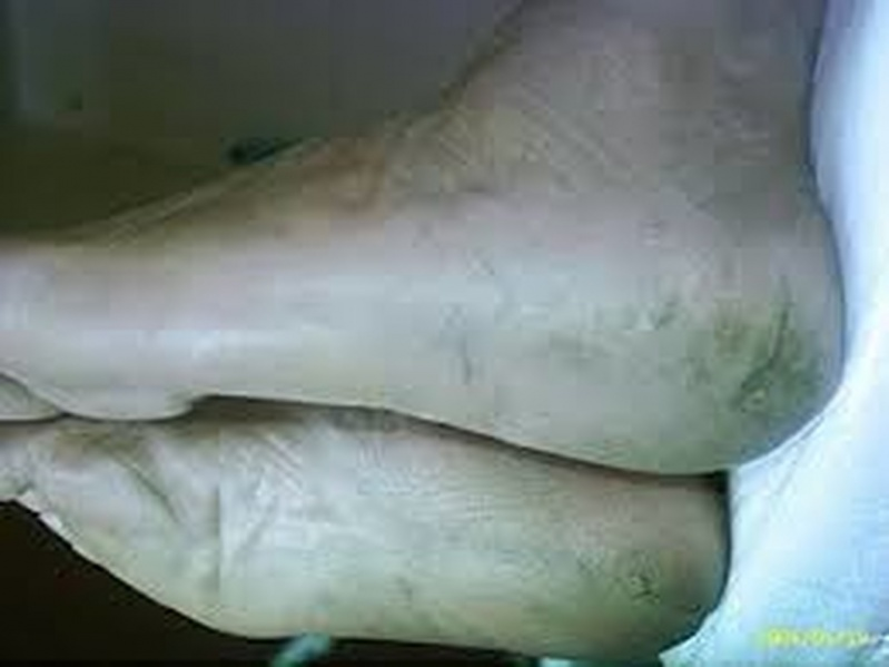 Tratamento para Rachadura no Calcanhar Centro - Tratamento para Rachadura dos Calcanhares