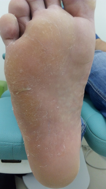 Tratamento para Rachaduras na Sola dos Pés Pacaembu - Tratamento de Rachadura no Calcanhar