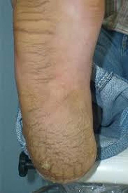 Tratamentos de Rachadura no Calcanhar Luz - Tratamento para Rachadura no Calcanhar