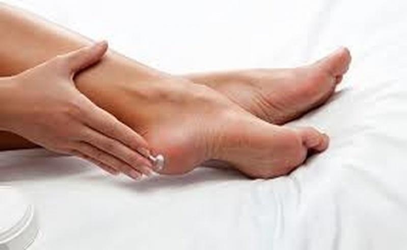 Tratamentos para Rachadura de Calcanhar Aclimação - Tratamento de Rachadura no Pé