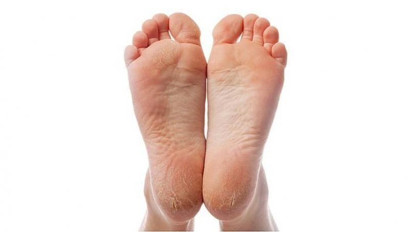 Tratamentos para Rachadura de Pés Luz - Tratamento contra Rachaduras entre Os Dedos